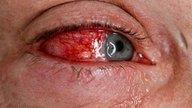 Qué puede causar un derrame en el ojo y cómo tratar