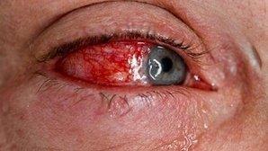 Qué puede causar un derrame en el ojo