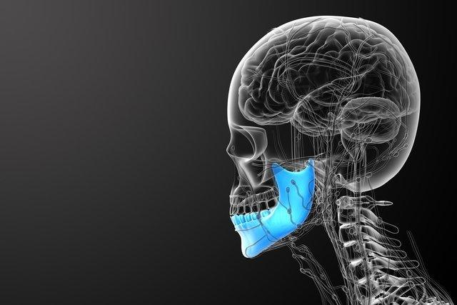 Como identificar o câncer de mandíbula