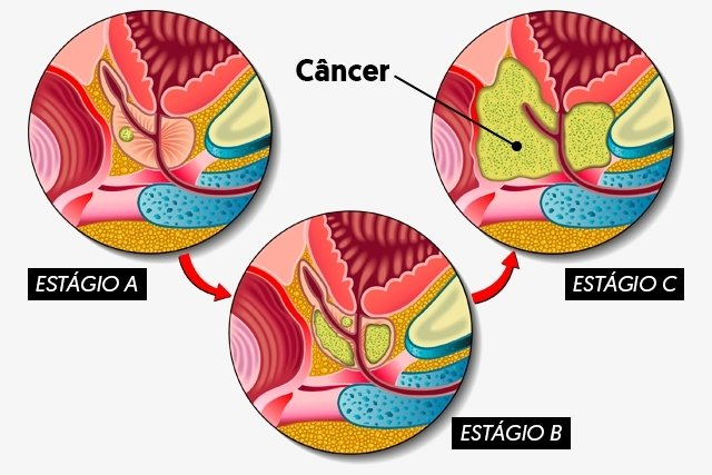 Ilustração dos estágios do câncer de próstata