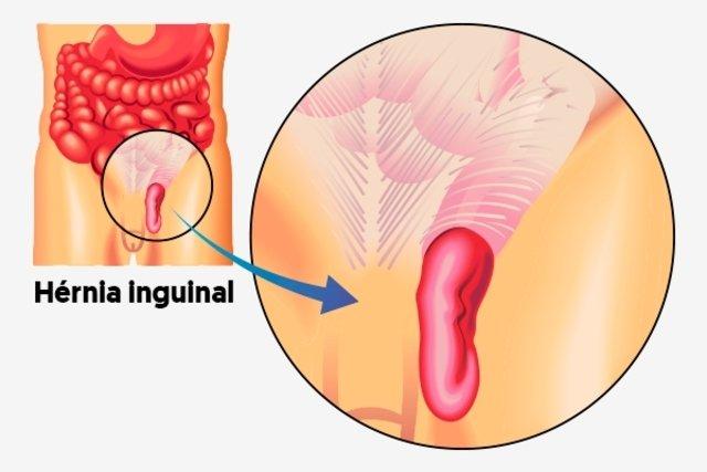 Hérnia inguinal: sintomas, como é a cirurgia e recuperação