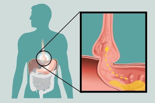 O que é Hérnia diafragmática, principais tipos e como tratar