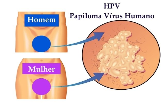come eliminare virus hpv)