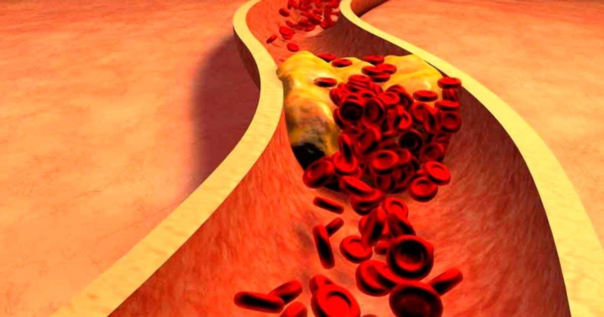 como saber si tienes colesterol sin analisis