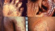 Qué es la lepra, síntomas y tratamiento