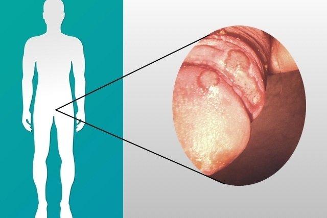Sintomas de IST no homem