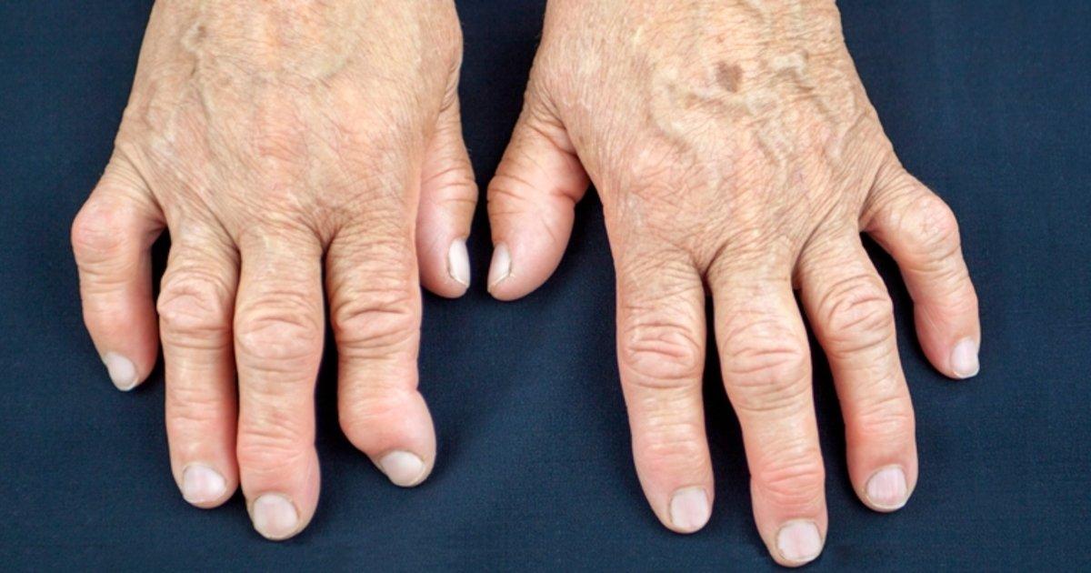 dieta para la artrosis de manos ejercicios