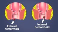 What are hemorrhoids, symptoms and how to treat