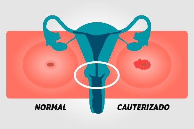 Cauterização do colo do útero: o que é, como é feita e recuperação