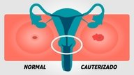 Cauterization of the Cervix: How is the procedure and recovery process