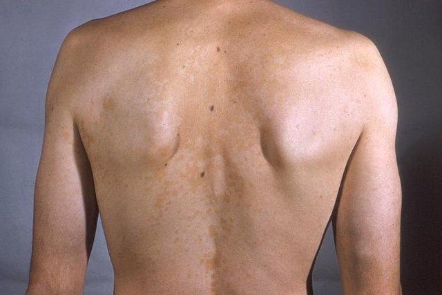 Sacar manchas negras de la piel