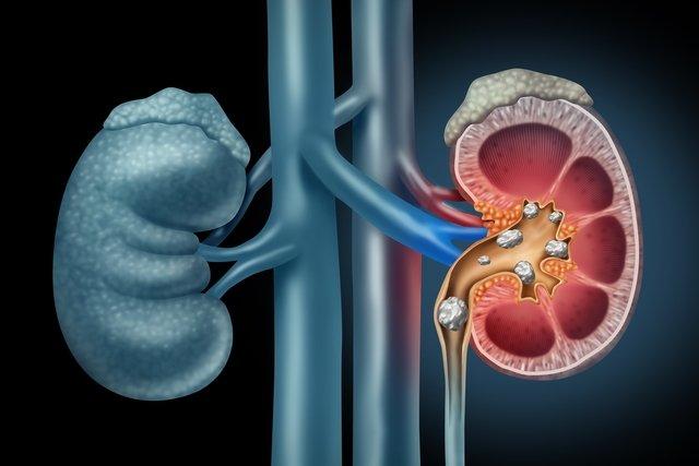 Pedra nos rins: o que é, sintomas, causas e tratamento