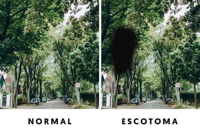 Escotomas: o que são, sintomas, causas, tipos e tratamento