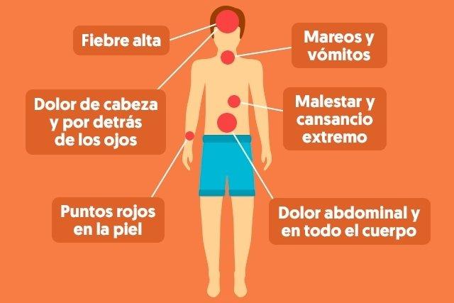 Síntomas del dengue clásico