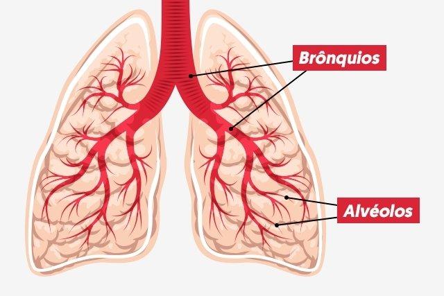 O que é a Broncopneumonia e Como tratar