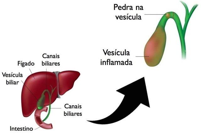 Sintomas de pedra na vesícula