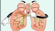 Tudo sobre Bronquite: Tipos, Causas, Sintomas e Tratamento