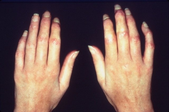 Como identificar e tratar a Esclerodermia