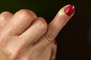 Paroníquia: quando a manicure tira um bife