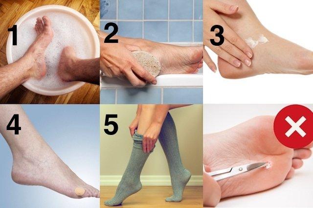 5 passos para eliminar calos em casa