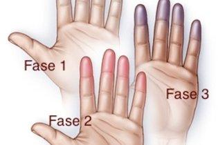 Alteração da cor da mão na Doença de Buerger