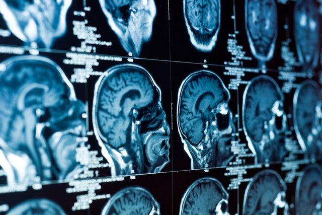 sindrome-da-sela-vazia_35250_l Síndrome da sela vazia: o que é, sintomas e tratamento