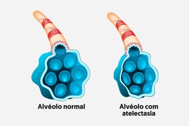 O que é atelectasia pulmonar e como tratar