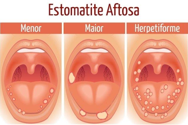 O que pode ser ferida na língua, boca e garganta