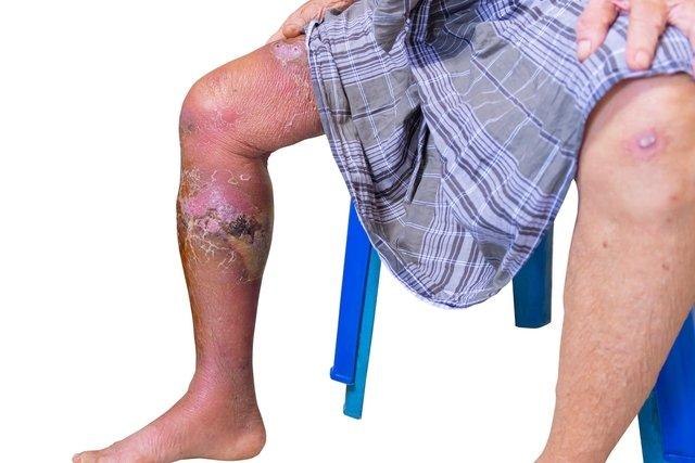 mala circulación en las piernas diagnóstico de diabetes