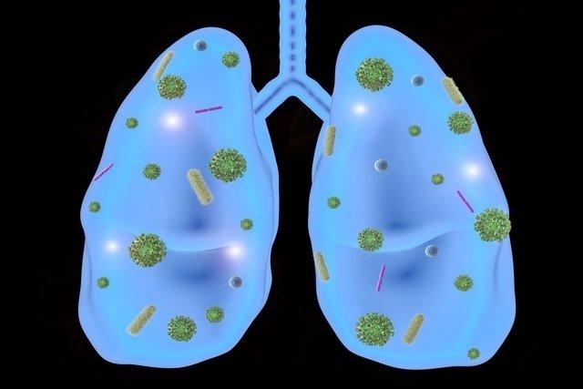 Síntomas de infección respiratoria