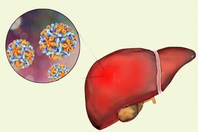 Todo sobre Hepatite B