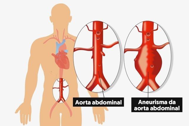 Porque da aneurisma abdominal