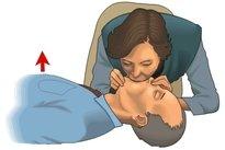 Como fazer respiração boca a boca