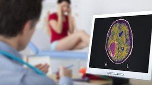 Sintomas de tumor no cérebro