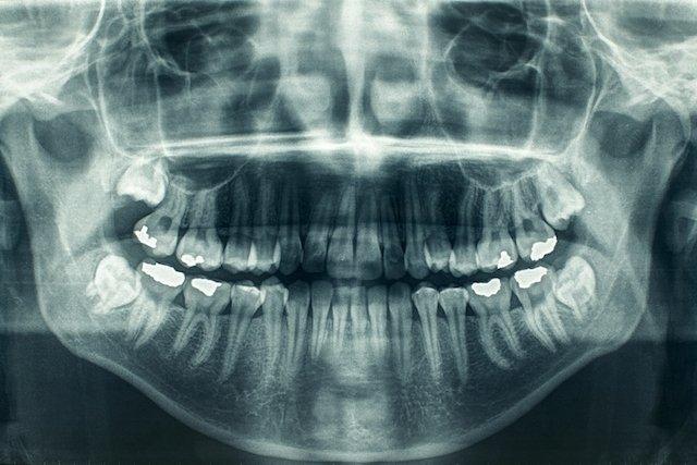 Para que serve a ortopantomografia e como é feita