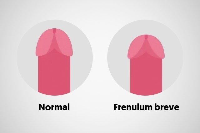 Sex frenulum breve Penis Frenulectomy.