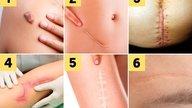 Cirurgia plástica para tirar cicatriz: quando e como fazer