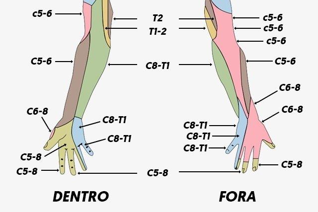 Pernas nas espinal estenose dormência