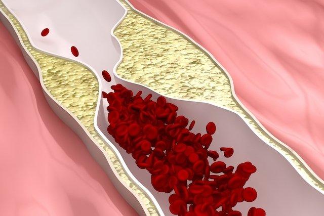 Doença coronariana: o que é e seus sintomas