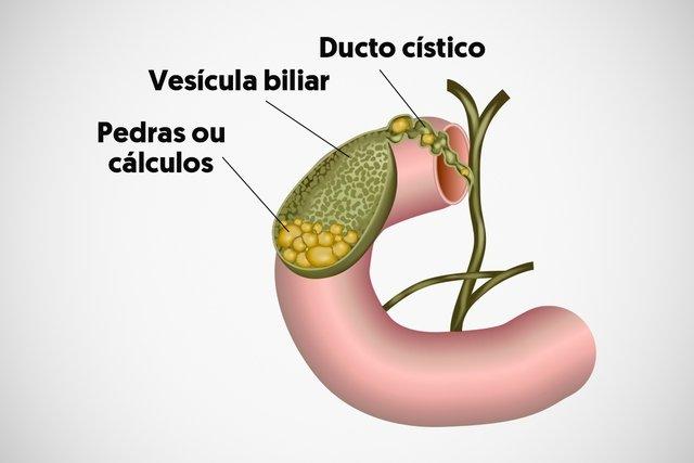 dieta alimenticia para operados de vesicula