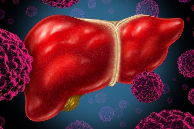 O que pode ser dor no fígado