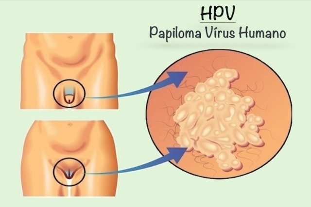 Hpv vírus gefahrlich - Parazit jatra - wien.hu Parazit jatra