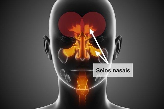 Seios da face que inflamam na sinusite