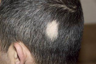 Alopécia areata em homens