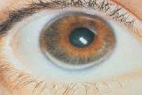 Arco no olho