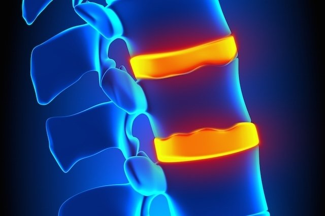 O que pode ser dor no meio das costas