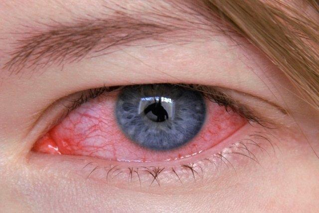 O que é a tuberculose ocular e como tratar