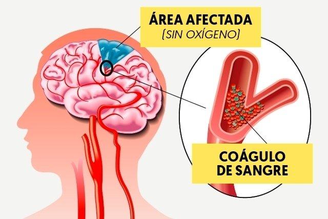 ¿Puede el tumor cerebral causar ceguera?
