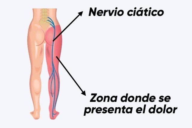 dolor en la pierna nervio