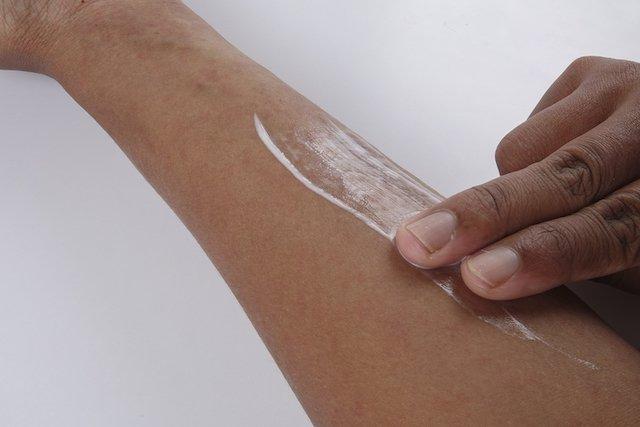 Como tratar a micose da pele e unhas